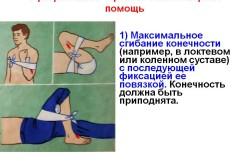 Артериальное кровотечение и первая помощь