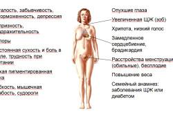 Гипотиреоз - причина кровотечения после месячных