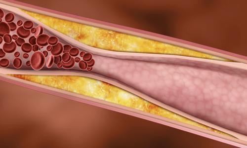 препараты от холестерина список