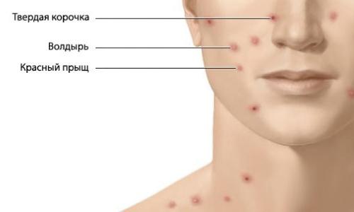 Симптомы геморрагического васкулита