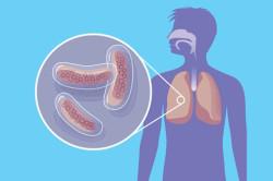 Туберкулез - повод для сдачи анализов на ВИЧ