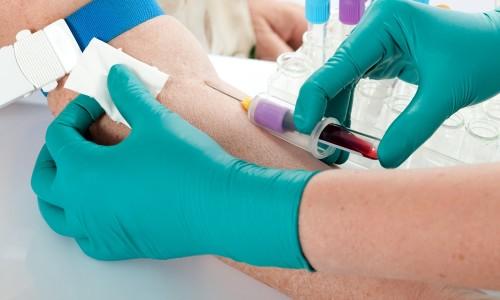 Анализ крови на исследование уровня прогестерона
