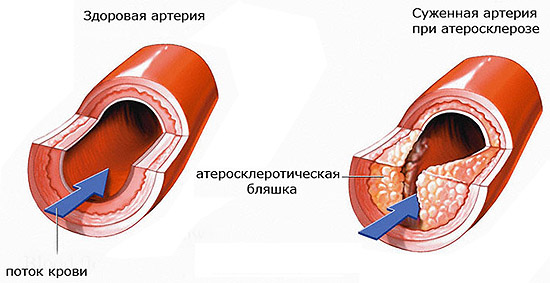 как уменьшить холестерин в крови форум