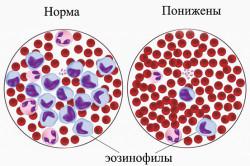 Норма и нехватка эозинофилов в крови