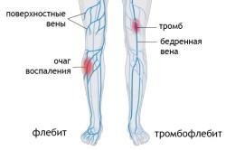 Тромбофлебит - противопоказание к применению крапивы