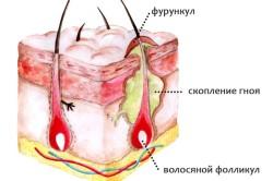 Фурункулез - показание к переливанию крови