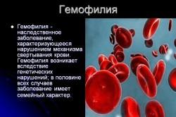 Понятие гемофилии