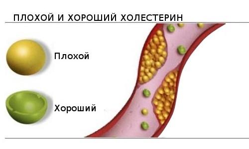 Плохой (низкой плотности) и хороший (высокой плотности) холестерин в крови