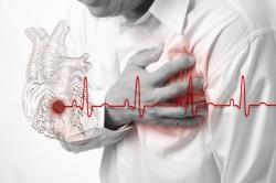 Инфаркт - последствие тромбоза