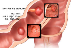 Полипы в кишечнике - причина поноса с кровью