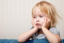 Краснуха - причина моноцитарного лейкоцитоза