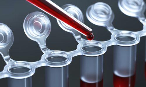 Кровь для оценки состояния эритроцитов