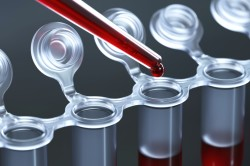 Анализ крови при подозрении на лейкоз