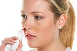 Носовое кровотечение - признак тромбоцитопении