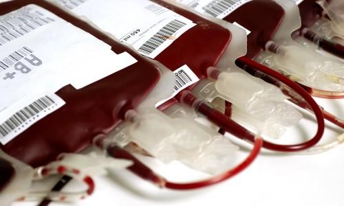 Донорская кровь в банке крови
