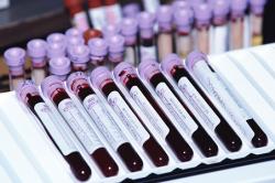 Анализ крови на кислотно щелочной баланс