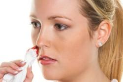 Кровотечение из носа при тромбоцитопении