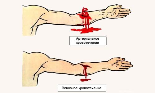 Атеросклероз артерий нижних конечностей для врачей