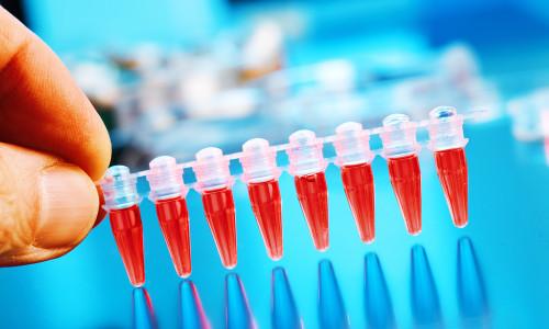 Анализ крови на содержание калия