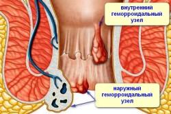 Геморрой - одна из причин кровотечений из заднего прохода