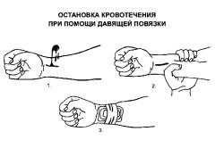 Остановка венозного кровотечения при  помощи давящей повязки