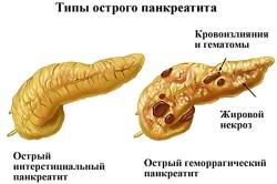 Панкреатит - причина повышения глюкозы в крови