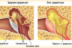 Отит - причина кровотечения из уха