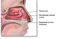 Схема полипа в носовой полости