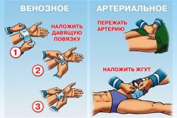 Методы остановки венозного и артериального кровотечений