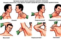 Остановка кровотечения пальцевым прижатием