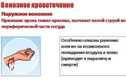 Признаки венозного кровотечения