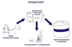 Процесс забора пуповинной крови