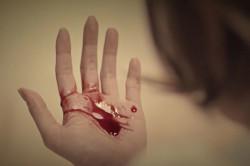 Рвота с кровью - симптом пищеводного кровотечения
