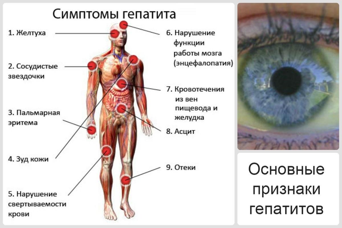 Последние стадии цирроза печени симптомы