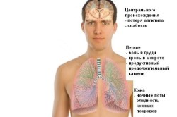 Туберкулез - одна из причин легочного кровотечения