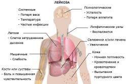 Общие симптомы лейкоза
