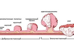 Рак - причина повышения лейкоцитов