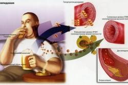 Схема образования дислипидемии