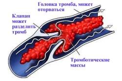 Схема тромбофилии