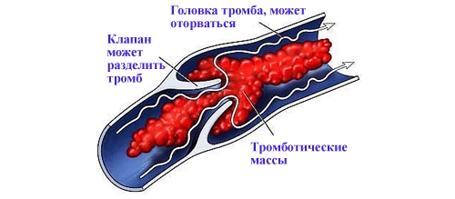 Сургитрон отзывы лечение храпа