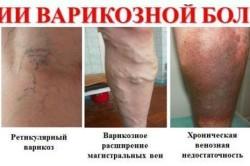 Варикоз - следствие повышенной свертываемости крови
