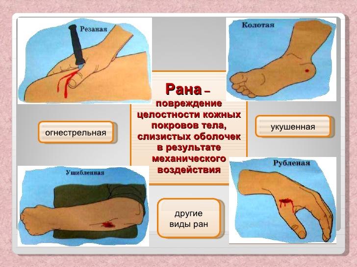 Как сделать так чтобы рана зажила быстро