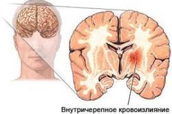 Внутричерепное кровоизлияние