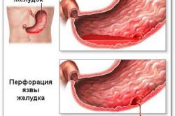 Кровь при рвоте из-за язвы желудка