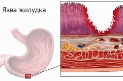 Язва желудка - фактор, провоцирующий пищеводное кровотечение