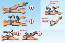 Схема наложения жгута на ногу