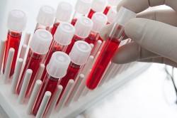Плановый анализ крови