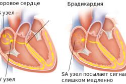 Брадикардия - симптом гипокалиемии