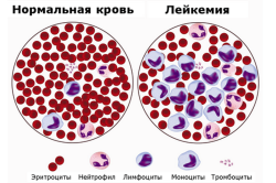Рак крови (Лейкемия)