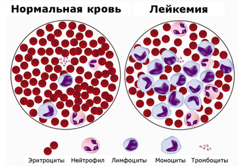 Значение болезней рак отчего